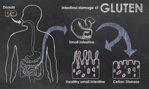 Intestinal Damage Of Gluten